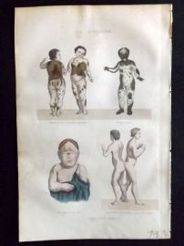 Buffon 1849 Hand Col Medical Print. Conjoined Twins, Skin Disease